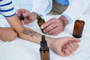 Doctor performing allergy test on skin